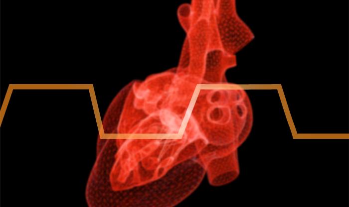 ECM Heartbeat
